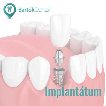 Implantológia - Éljen újra teljes életet!