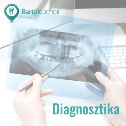 Diagnosztika - Minden a stabil alapoknál kezdődik
