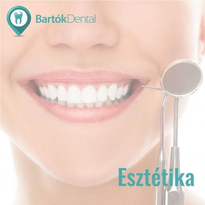 Esztétikai fogászat - A nemcsak egészséges, de szép mosolyért