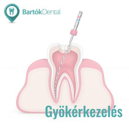 Gyökérkezelés - Megmentjük a menthető fogat!